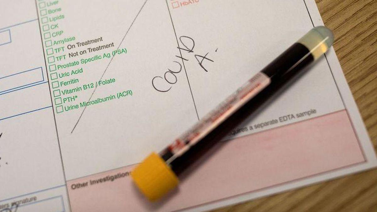 Un 20% de personas sanas tiene anticuerpos contra el COVID-19 por resfriados comunes, según un estudio