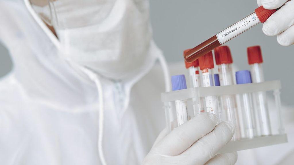 Comprobamos en primera persona el negocio de los test de coronavirus: recetas, listas de espera y bulos