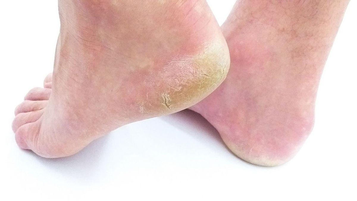 Cinco tips para eliminar las durezas de los pies de los hombres y lucirlos saludables