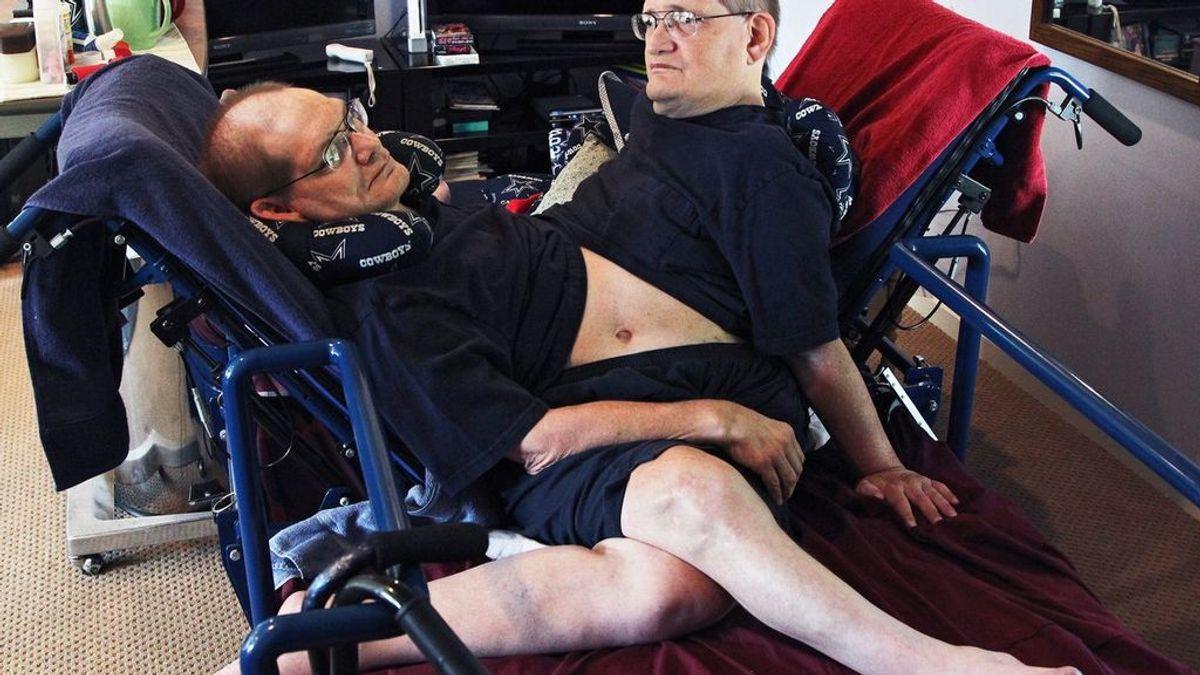 Mueren Ronnie y Donnie Galyon, los siameses más mayores del mundo