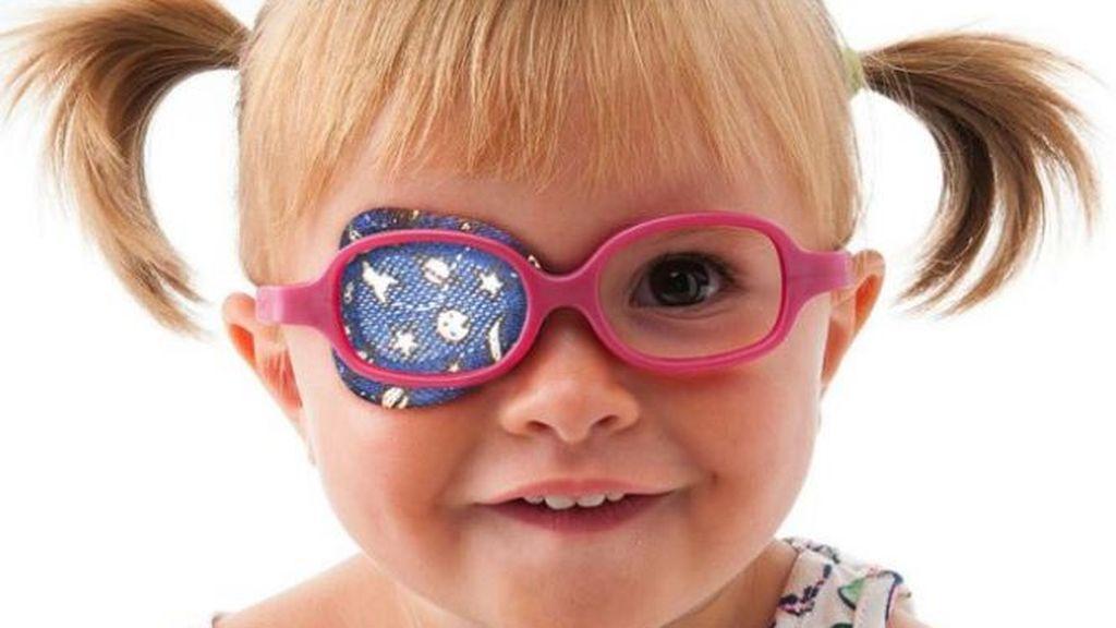 Es normal que a los niños que sufren de ojo vago se les tape este con un parche.