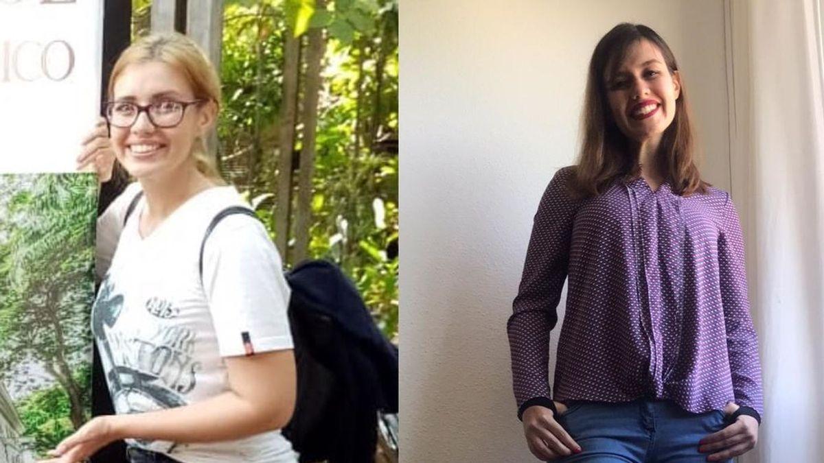 """Kellie tiene lipedema desde los 17 años: """"La enfermedad de la grasa dolorosa causa angustia física y emocional"""""""