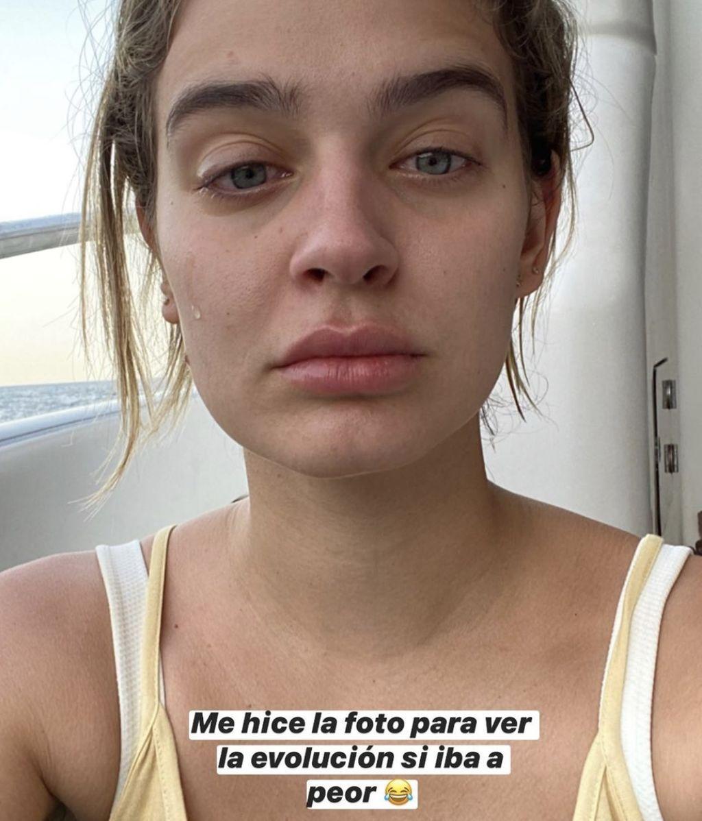 Laura Escanes reacción alérgica