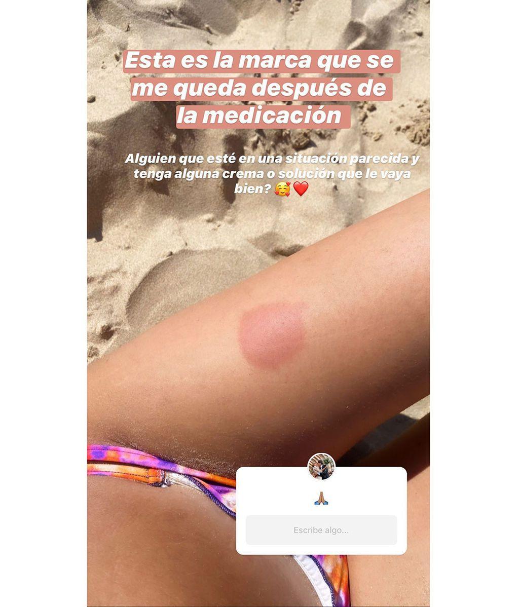 María Pombo enseña el efecto secundario de su medicación